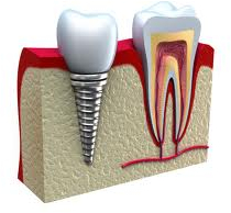 Dental implant bucharest